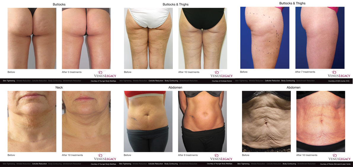 Venus Legacy - Cellulite treatment