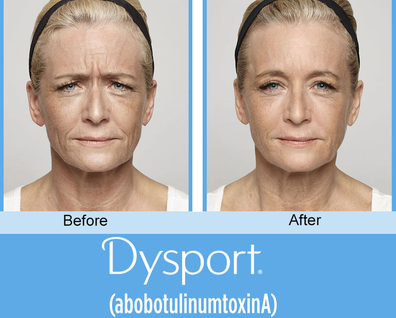 before and after dysport