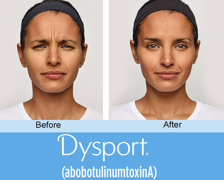 Dysport in Ft Lauderdale -- add volume to aging cheeks
