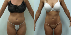 High-Definition SmartLipo