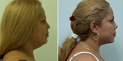 Face Neck Smartlipo