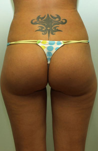 After Brazilian Buttlift