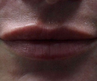 After Lip Enhancement