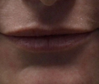 Before Lip Enhancement