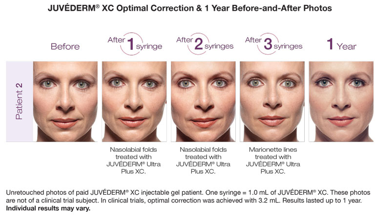 juvederm before and after photos in ft lauderdale