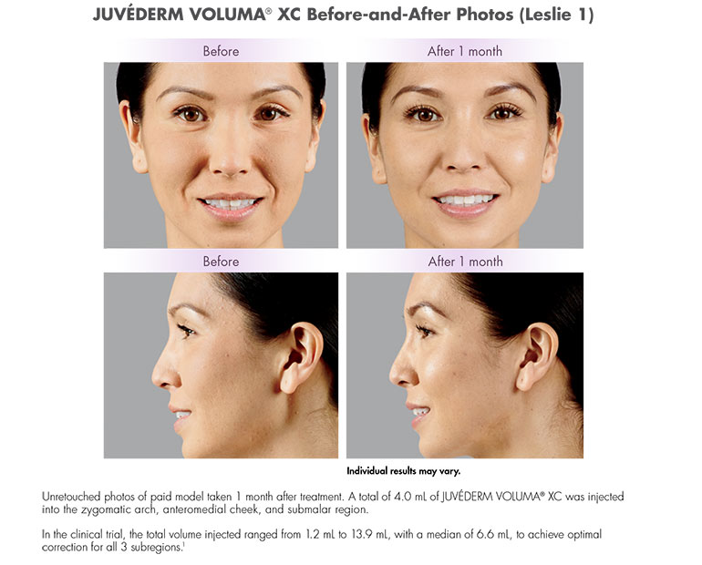 Juvéderm VOLUMA® XC in Ft Lauderdale. Unretouched photos of paid model taken 1 month after treatment. A total of 4.0 mL of JUVÉDERM VOLUMA® XC was injected into the zygomatic arch, anteromedial cheek, and submalar region. In the clinical trial, the total volume injected ranged from 1.2 mL to 13.9 mL, with a median of 6.6 mL, to achieve optimal correction for all 3 subregions.