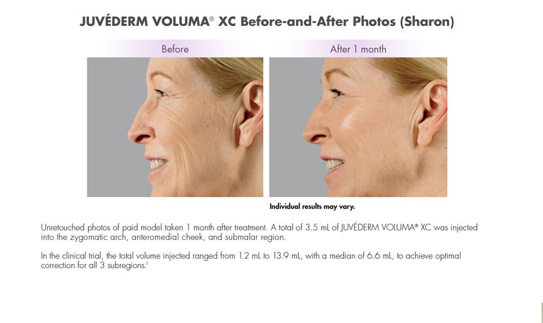 juvederm VOLUMA® XC Ft Lauderdale, Miami, Caribbean-- Unretouched photos of paid model taken 1 month after treatment. A total of 3.5 mL of JUVÉDERM VOLUMA® XC was injected into the zygomatic arch, anteromedial cheek, and submalar region. In the clinical trial, the total volume injected ranged from 1.2 mL to 13.9 mL, with a median of 6.6 mL, to achieve optimal correction for all 3 subregions.1