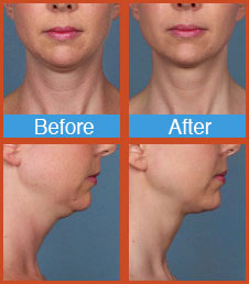 Kybella before and after ft lauderdale