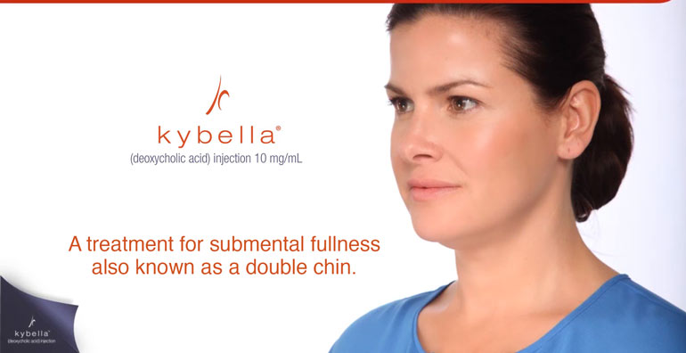 JKybella treatment in Ft Lauderdale -- treats submental fullness aka douuble chin
